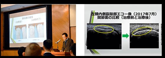 膝内障に対するDRT療法のエコー画像